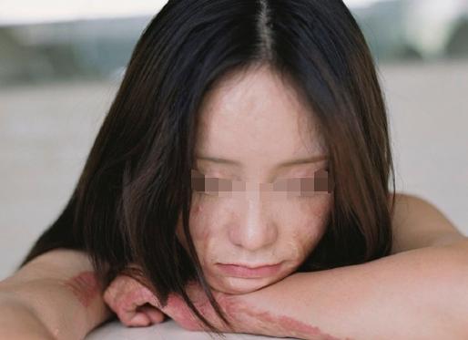 二十多年面部烧伤疤痕怎么治疗