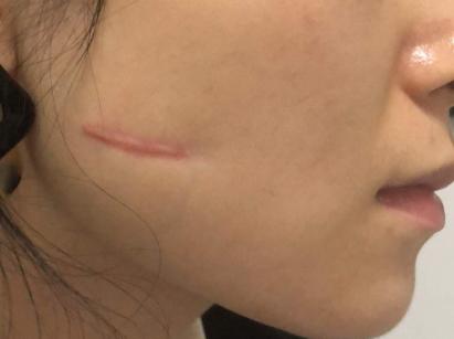 深圳治疗增生性疤痕医院